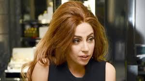 Sakit Gigi, Lady Gaga Tak Bisa Makan
