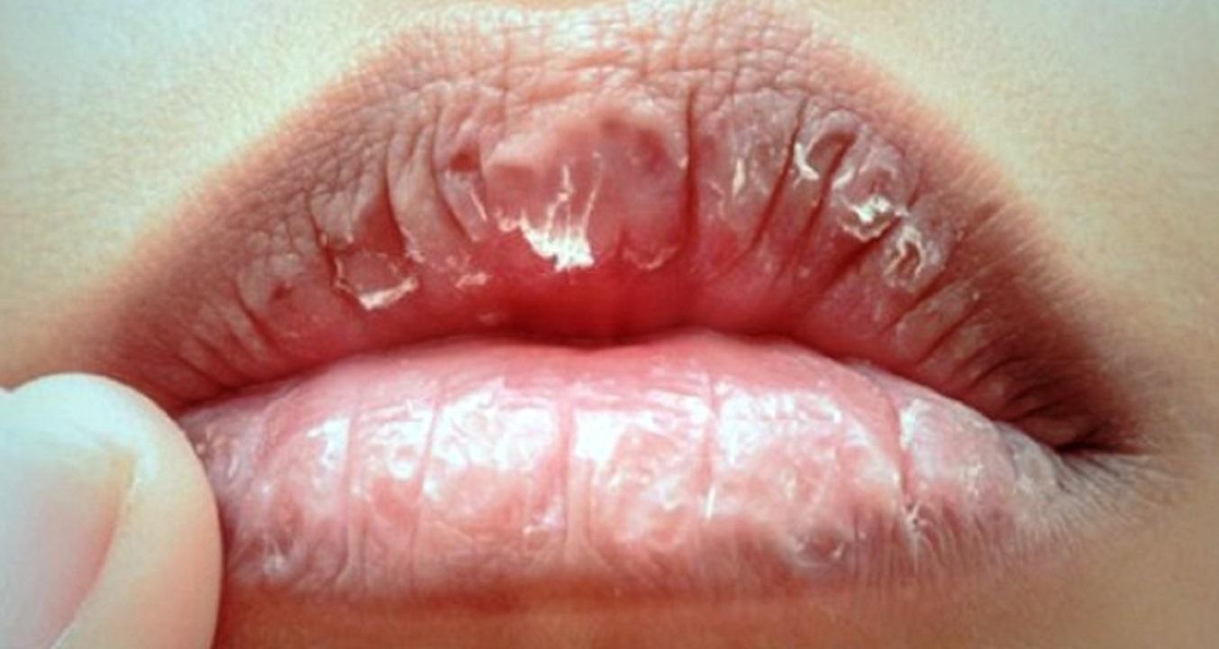 Ini Tips Agar Bibir Tidak Kering Saat Puasa