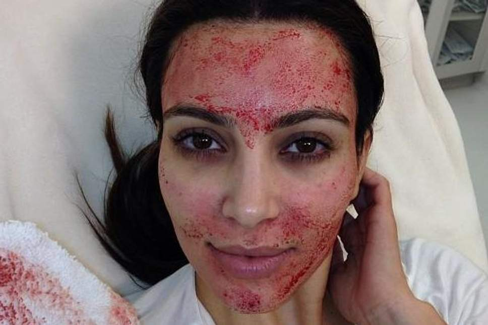 Facial Vampir: Perawatan Wajah Menggunakan Darah?