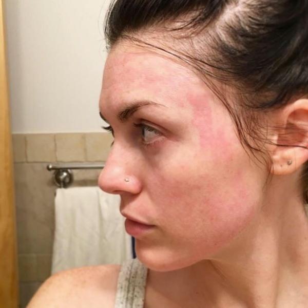 Ini 6 Tanda Wajah Tidak Cocok Dengan Skincare
