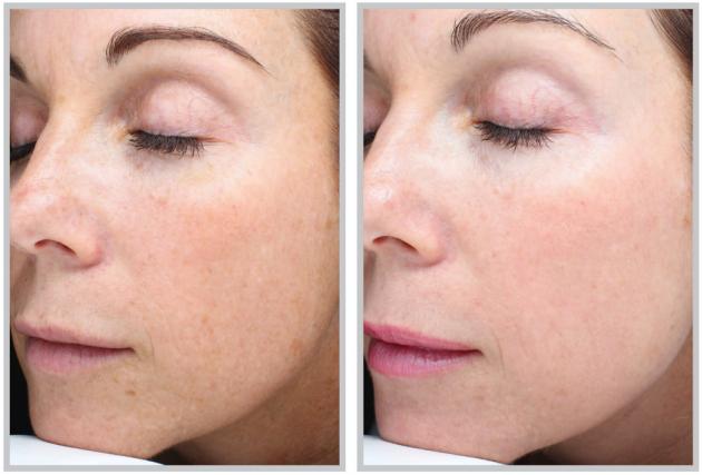 Skincare Ini Wajib Untuk Menghilangkan Tanda Penuaan