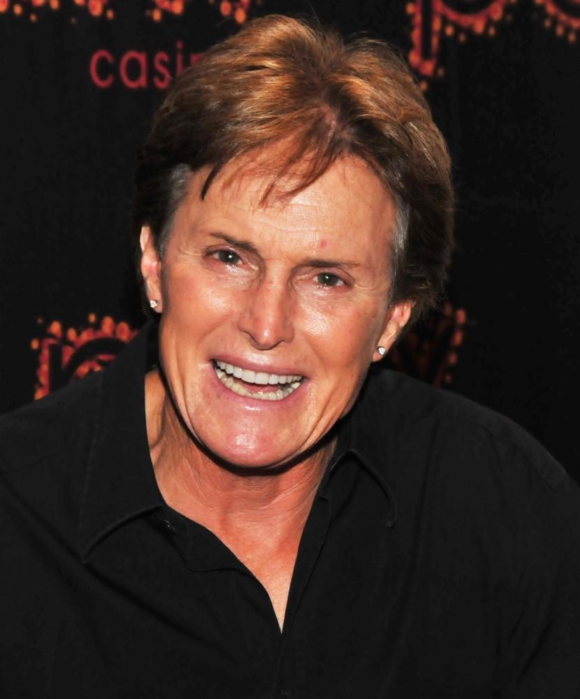 Bruce Jenner Mengidap Kanker Kulit?