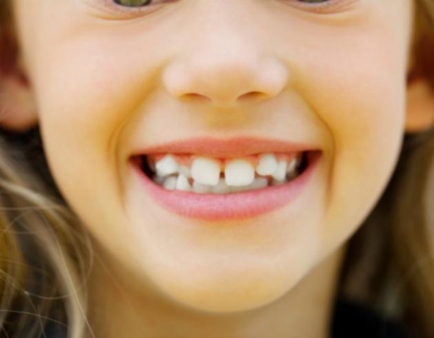 Cara Mudah Mencegah Gigi Anak Berlubang
