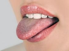 Penyakit-Penyakit di Mulut yang Tak Boleh Diabaikan